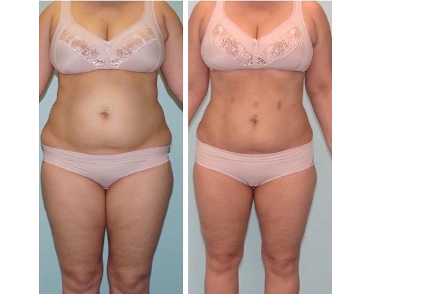 лилия нилова до и после похудения фото